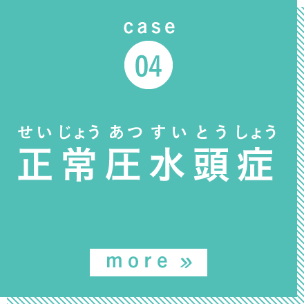case04 正常圧水頭症 more